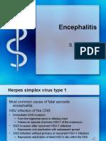 IDEncephilitis