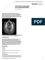 CADASIL (Cerebral Autosomal Dominant Arteriopathy With Subcortical Infarcts and Leukoencephalopathy)_ Background, Pathophysiology, Epidemiology