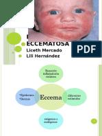 Dermatitis Atópica Presentación