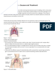 Tracheal Deviation - Causes and Treatment