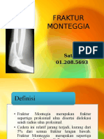 309835376-fraktur-monteggia-ppt.ppt