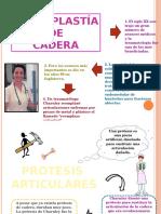 Artroplastia de Cadera IV