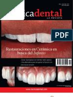 alta tecnica dental - restauraciones en ceramica
