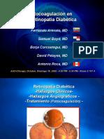 Fotocoagulación en Retinopatía Diabética