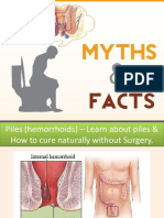 Piles (Hemorrhoids) – Learn About #Piles & How to Cure Naturally Without Surgery.