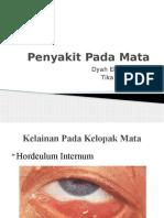 Penyakit Pada Mata.pptx