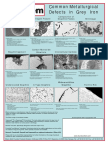 27-ELKEM_poster-common Metallurgical Defects in Cast Irons