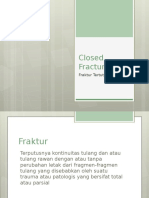 Closed Fracture