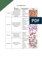 Anormales comunes en hematologia