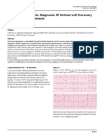 Electrocardiographic Diagnosis of Critical Left Coronary