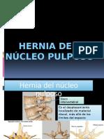 HNP.pptx