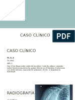 Caso Clínico - Fractura Humeral