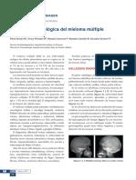 semiologia radiologica mieloma multiple.pdf