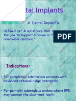 Dental Implants Perio