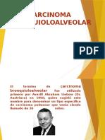 Diapositiva Carcinoma Bronquioloalveolar
