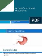 Patología Quirúrgica Más Frecuente