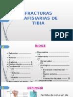 Fracturas Diafisiarias de Tibia