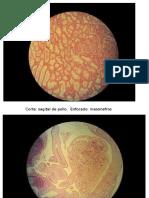 Placas Embrio II Parcial unah