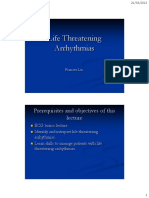 Life Threating Arrythmias_F Lin