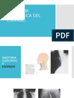 Patología Quirúrgica Del Esófago