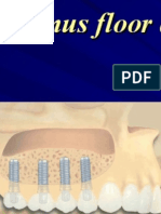 Sinus Floor Augmentation- Course NP