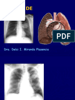 Diagnóstico Por Imagen - Cancer Pulmonar