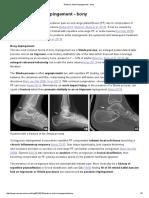 Posterior Ankle Impingement - bony — Rayner & Smale.pdf
