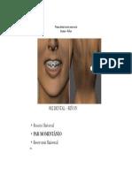 Pieza Dental Como Reservorio