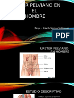 Ureter Pelviano