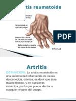 Artritis Casi Terminado222222[1]
