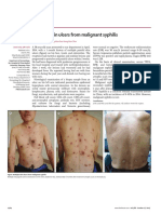 Multiple Skin Ulcers From Malignant Syphilis