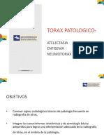 Teoria 05 Patologia de Torax Atelectasia Neumotorax (1)