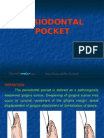 Peridontal Pocket Perio
