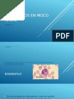 Eosinofilos en Mucosa Nasal