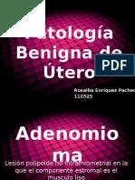 Patología Benigna de Útero.pptx