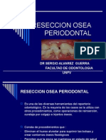 Reseccion Osea Periodontal