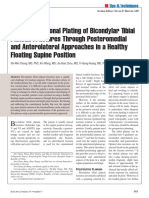 Posterior Coronal Plating of Bicondylar Tibial Plateau Fractures Through Posteromedial and Anterolateral Approaches in a Healthy Floating Supine Position