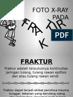 Slide Xray Fx