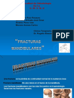 fracturamandibular-091113130504-phpapp01