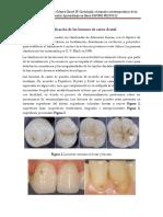 Clasificación de Las Lesiones de Caries Dental