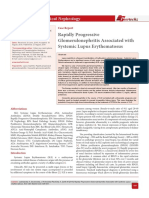 Rapidly Progressive Glomerulonephritis Associated with Systemic Lupus Erythematosus