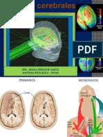 Tumores Del Sistema Nervioso Central.