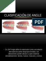Clasificación de Angle
