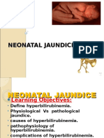 Jaundice-neonatal 2016