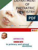 Anterior Cross Bites in Primary Mixed Dentition Pedo