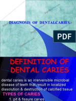 Diagnosis of Dental Caries Pedo
