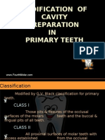 Modification of Cavity Preparation in Primary Teeth Pedo