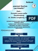 REFARAT Laserasi Ductus Lacrimalis