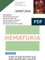 Hematuria Sede Hipolito Unanue