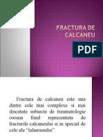 Fractura de Calcaneu
